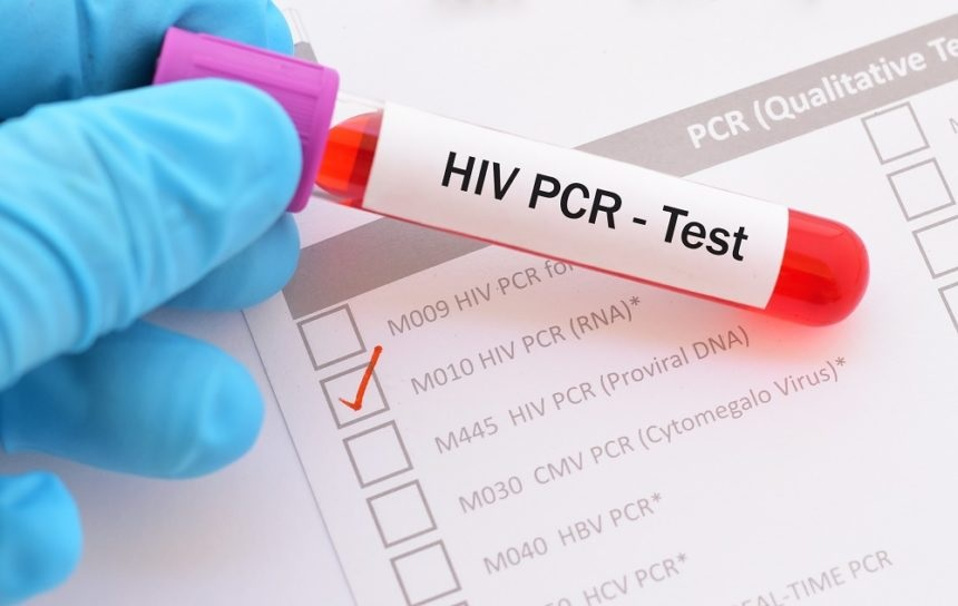 Smartest Solutions for the STI Tests