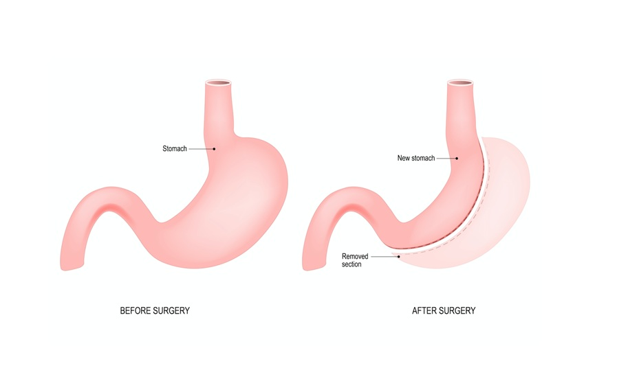 What's Gastric Sleeve Surgery? Here Is What You Need To Know!